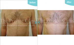 MicroLipo Male Chest Treatment before after photo