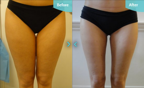 Before and after MicroLipo to the thighs