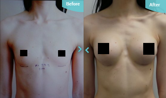 Before and after breast implants augmentation with Dr Fallahdar at The Private Clinic Cosmetic Surgery