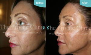 Before and after fat transfer to the face results_ performed by Dr Dennis Wolf at The Private Clinic