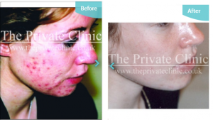 Before and after shots of our acne treatment at The Private Clinic.