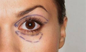 Blepharoplasty Plastic Surgery upper and lower eyelids