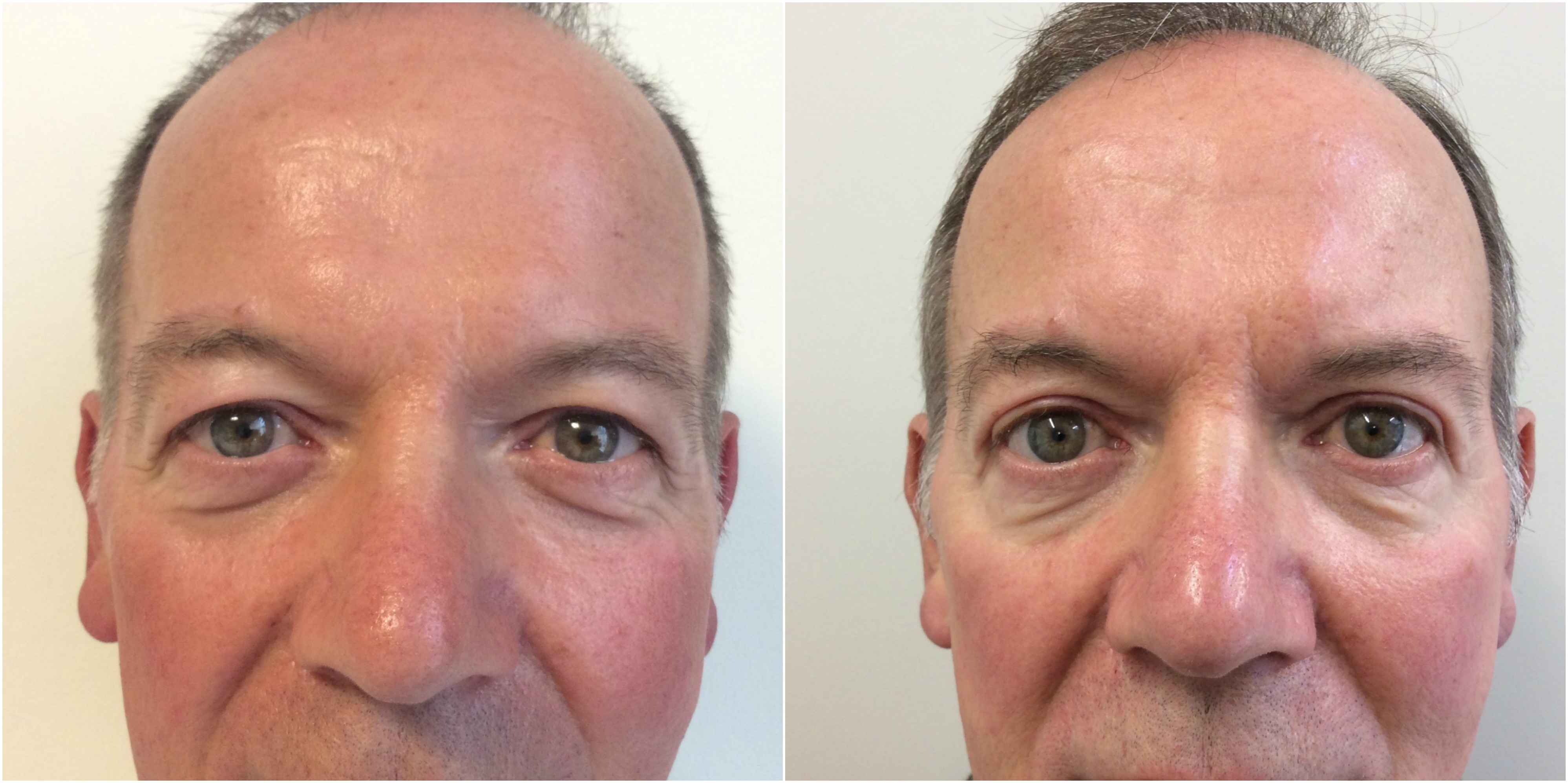 Before and after Upper Blepharoplasty with Dr Davood Fallahdar.