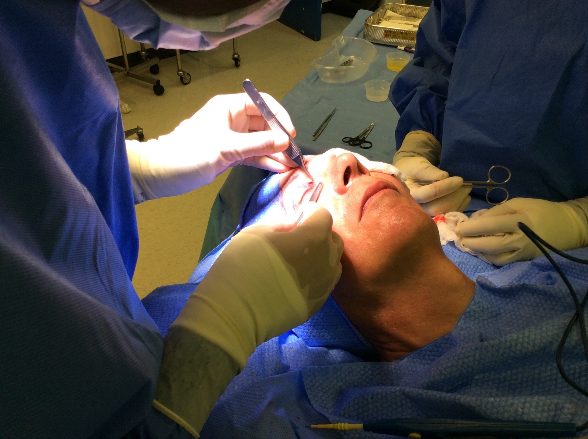 Patient before his Upper Blepharoplasty with Dr Fallahdar.