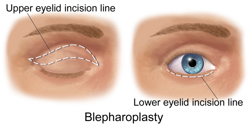 blepharoplasty upper lower eyelid surgery incision line