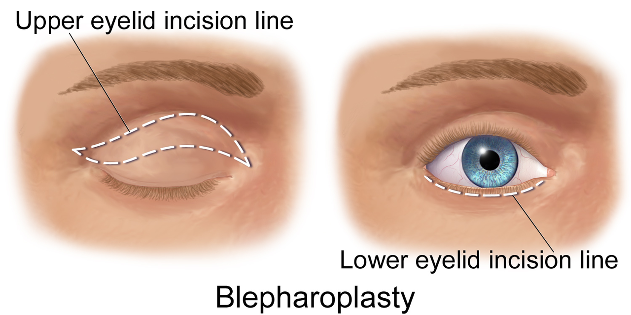 Upper and Lower Blepharoplasty Incision Lines