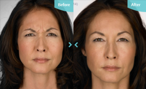 Before and after image of wrinkle injections.