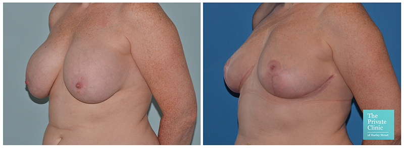 Beast auto augmentation breast lift before after photo