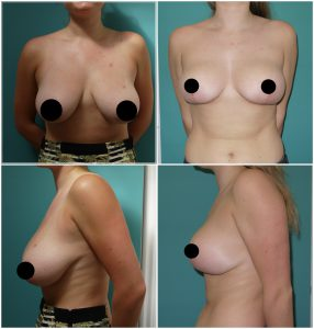 Before and after Breast Reduction at The Private Clinic.