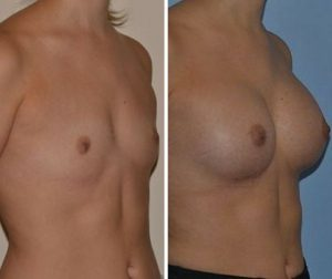 Breast implants size and proportions before after photo