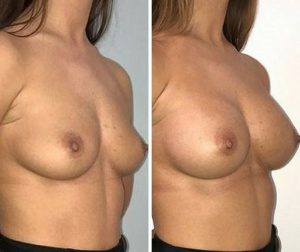 breast implant natural shape before after photo