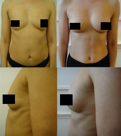 Breast Fat Transfer Before and After Results