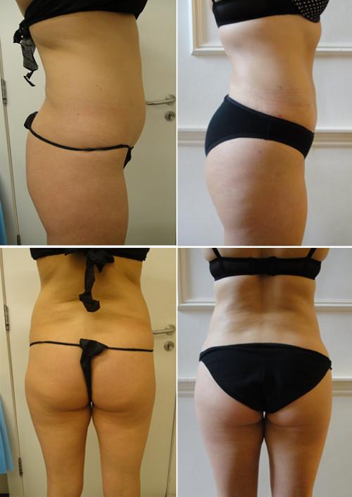 Buttock fat transfer with Microlipo