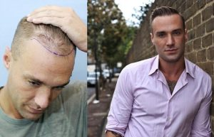 Calum Best before his first hair transplant and recently with his new hairline.