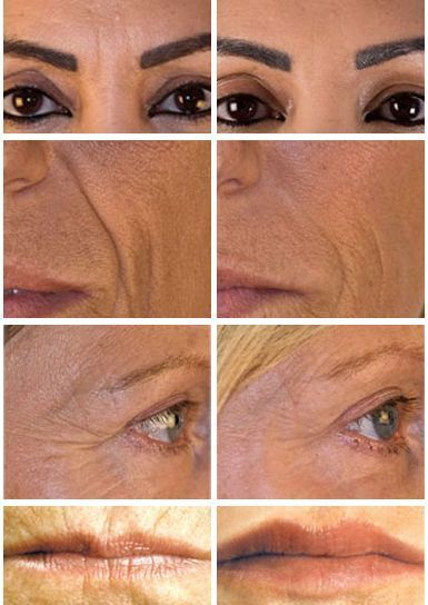 Dermal Filler Treatments by The Private Clinic