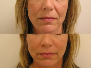 Dermal fillers naso-labial folds before and after photo