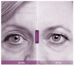 Dermal_fillers_-_Juvederm_-_before_and_after_
