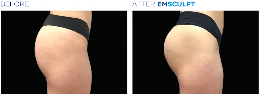 emsculpt before after female buttocks
