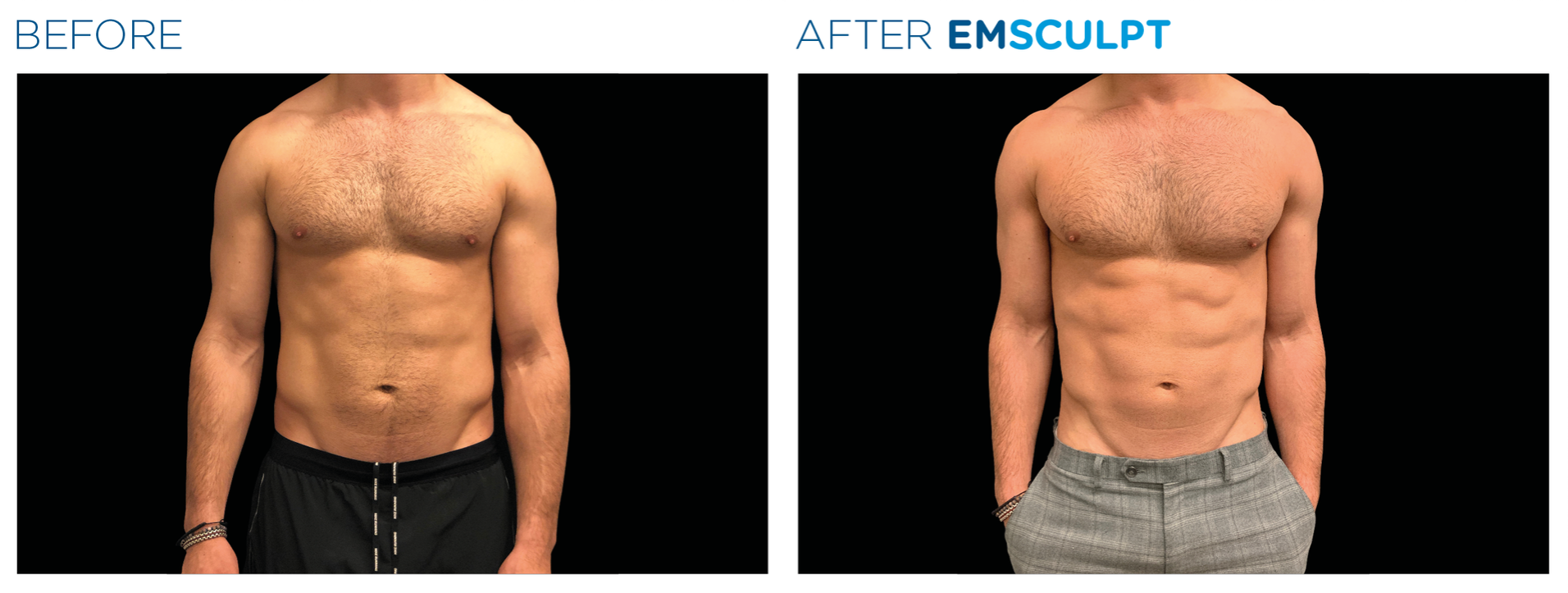 emsculpt male before and after abdomen toning, definition