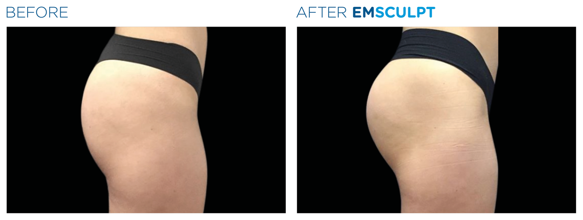 Emsculpt women buttocks definition before and after photo