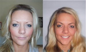 Before and after an Eyebrow Transplant at The Private Clinic.