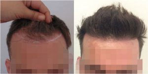 FUE Hair Transplant Before After Dr Mouzakis The Private Clinic