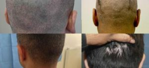 no scarring FUE hair transplant procedure