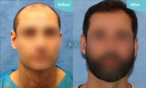 Hair Transplantation can help restore areas that have been lost, but it can't stop you losing more hair which is why we are so strict on the procedures we perform.