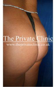 Fat Transfer Buttocks Before photo