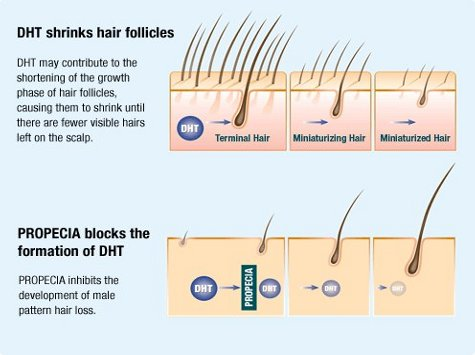 The Pros And Cons Of Hair Loss Medication Including The Side Effects The Private Clinic