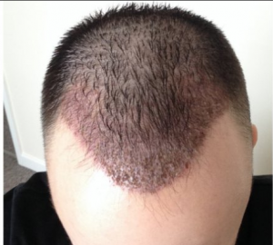 Four days after hair transplant treatment