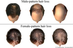 Hair Loss Patterns