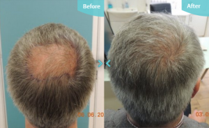 Hair Transplants Before and After Results Crown of head