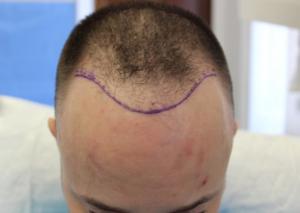 Hairline design transplant results before transplantation
