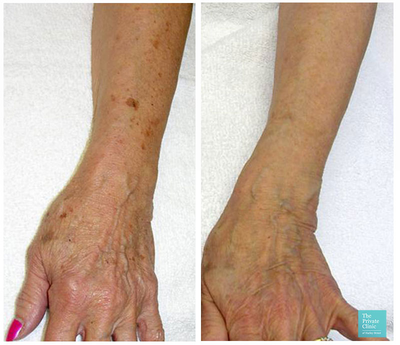 IPL Photorejuvenation pigmentation sun damage arms hands before after photo results