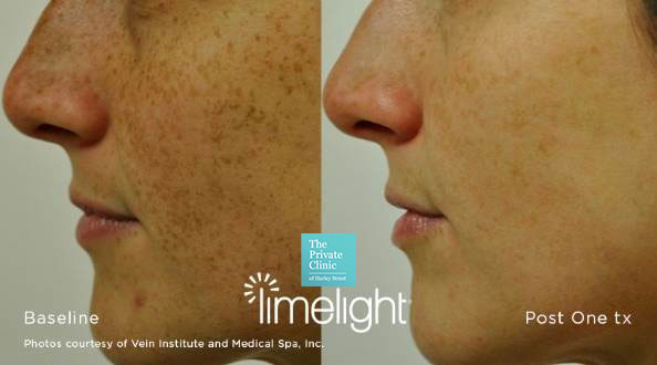 IPL skin treatment before after photo results