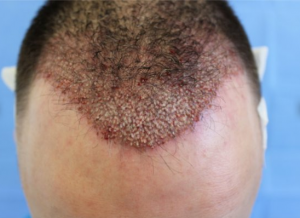 Immediately after hair transplantation to the area