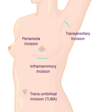 breast implant incision area