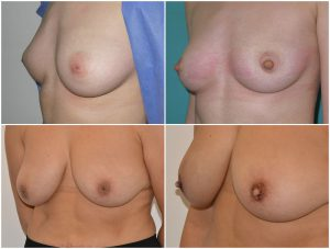 inverted-nipple-before-after-the-private-clinic-web