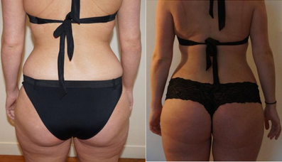 An example of VASER Liposuction performed at The Private Clinic.