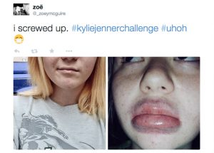 Social media has been flooded with unhappy attempts to get a bigger pout.