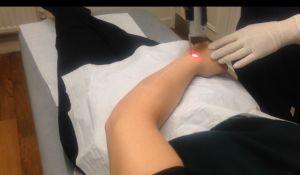 Laser-hair-removal-the-private-clinic-Nikola
