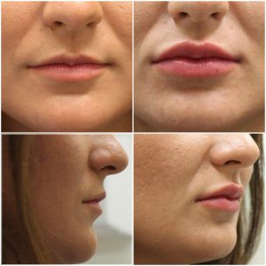 Before and after Lip Fillers at The Private Clinic, Bristol