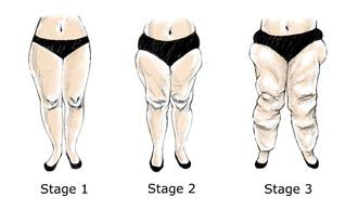 Lipoedema stages 1-3 out of five.