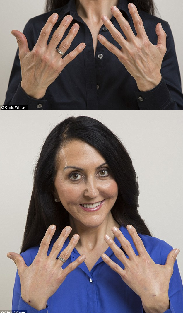 Journalist Liz Jones before and after fat transfer at The Private Clinic