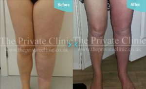 Before and after MicroLipo treatment for Lymphoedema.