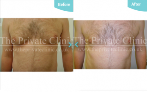 Before and after MicroLipo treatment on the male chest.