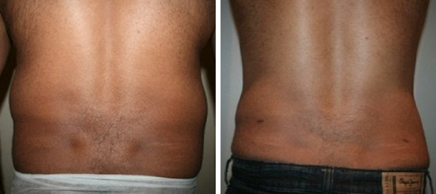 Male Liposuction flanks before and after photo result