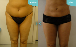 Before and after MicroLipo The Private Clinic