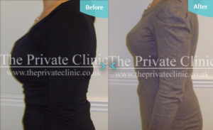 MicroLipo_Breast_Reduction_before_and_after